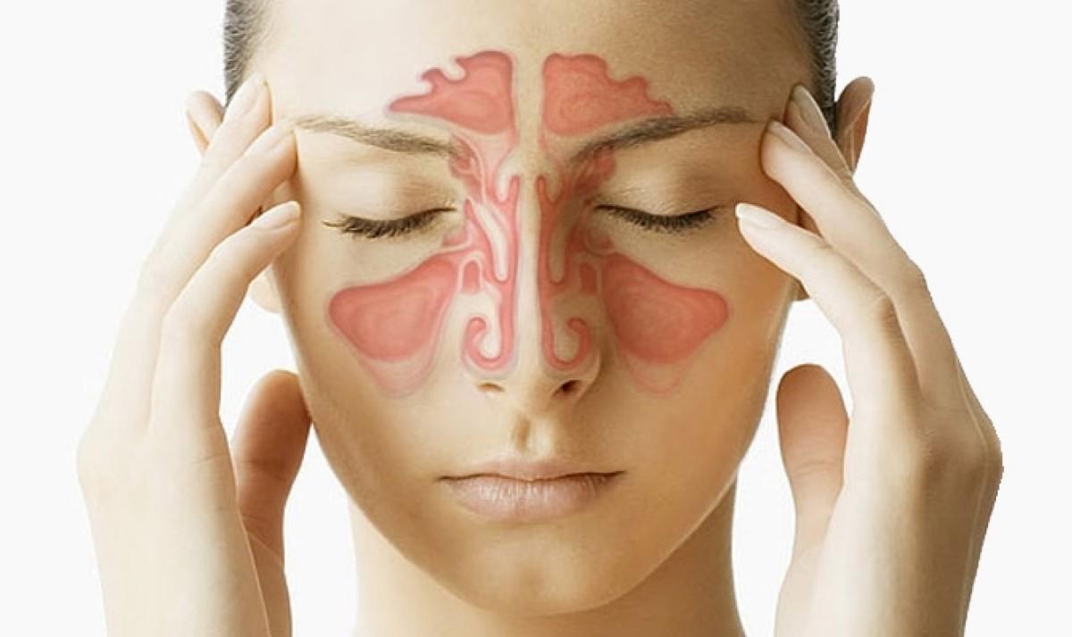 come-curare-la-sinusite